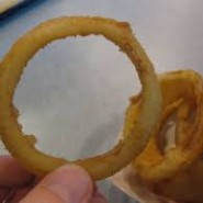My Onion Ring Accident